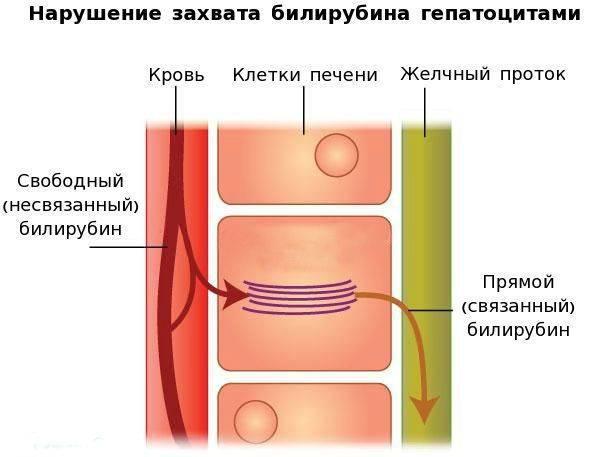 narushenie-zahvata-bilirubina-gepatocitami_s.jpg