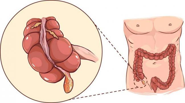 vospalenie-appendicita.jpg