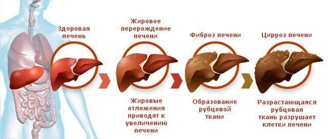 pechen-i-zhelchnyj-puzyr-4.jpg