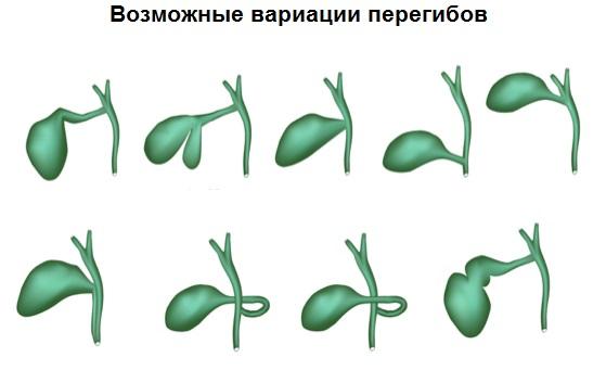 peregib-zhelchnogo-puzyrya-4.jpeg