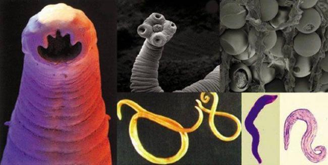 parasite-collage.jpg