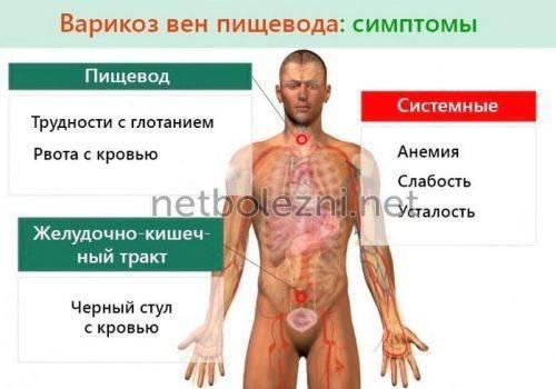 1497526839_varikoz-ven-pischevoda.jpg