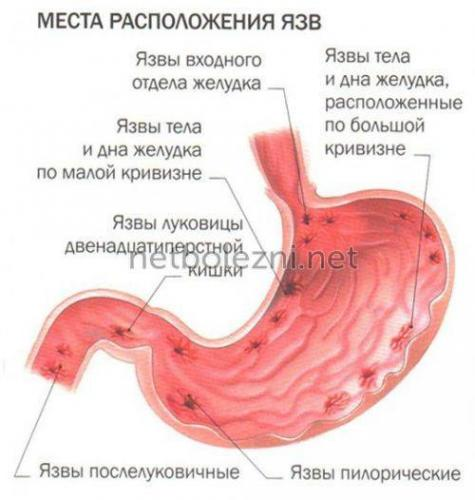 1497526887_yazva-zheludka.jpg