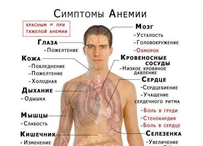 kruzhitsya-golova-i-podtashnivaet-prichiny-9.jpg