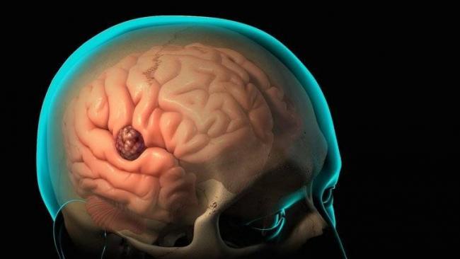 1548330631_opuhol-golovnogo-mozga.jpg