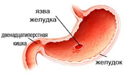 yazvy-zheludka-e1541332905795.jpg