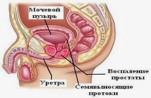 Bol-pri-vospalenii-prostaty.jpg