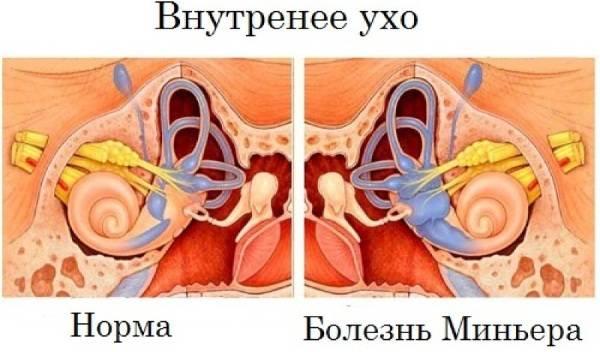 rezkoe-golovokruzhenie-prichiny-5.jpg