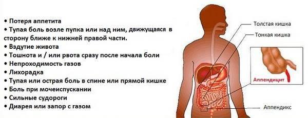 simptomy-appenditsita.jpg