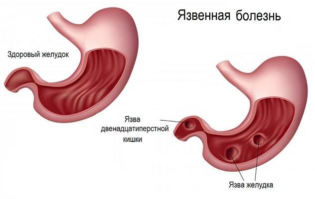 yazva-zheludka-1.jpg