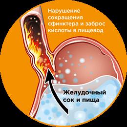 heartburn-image1.png