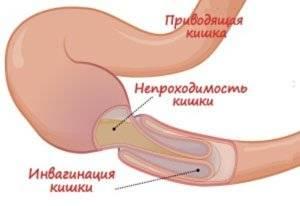 kishechnaya-neprohodimostj.jpg