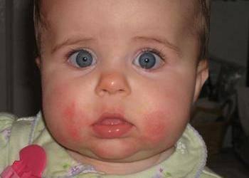 allergiya.jpg