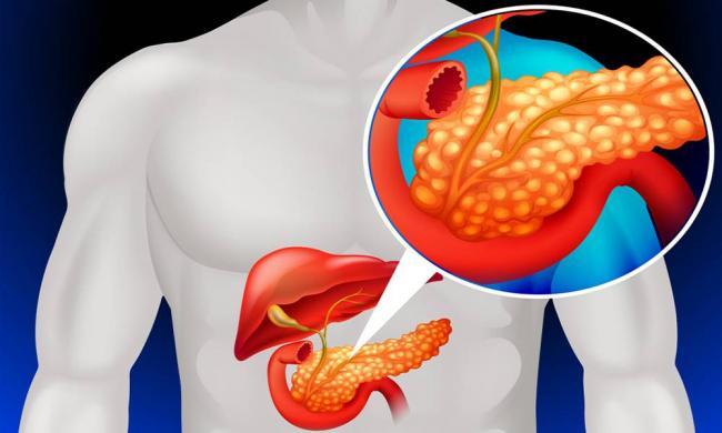 Biliarnyj-pankreatit.jpg