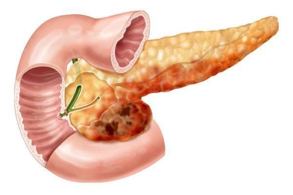 Simptomyi-bolezni-podzheludochnoy-zhelezyi-u-muzhchin-1-600x400.jpg