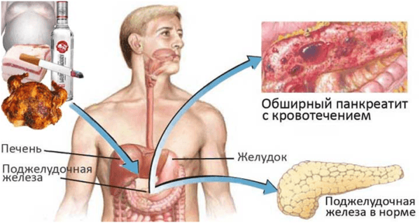 Prichinyi-razvitiya-pankreatita-600x319.png