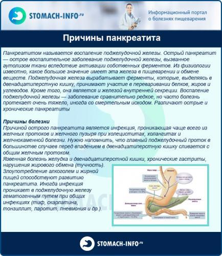 Prichinyi-pankreatita-600x691.png