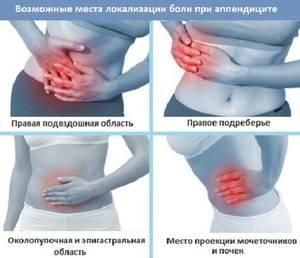 Болевые ощущения приступа аппендицита
