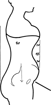 172px-Toleration_of_the_corset1057fig52_.png