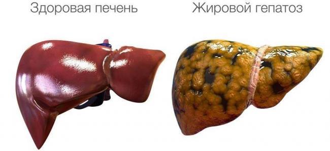 fibroskanirovanie-pecheni-pokazaniya.jpg