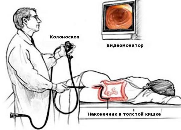 Kolonoskopiya-kishechnika-foto.jpg